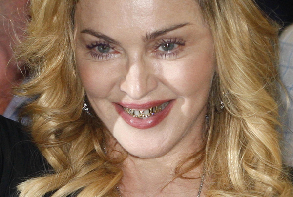 madonna+golden+teeth1
