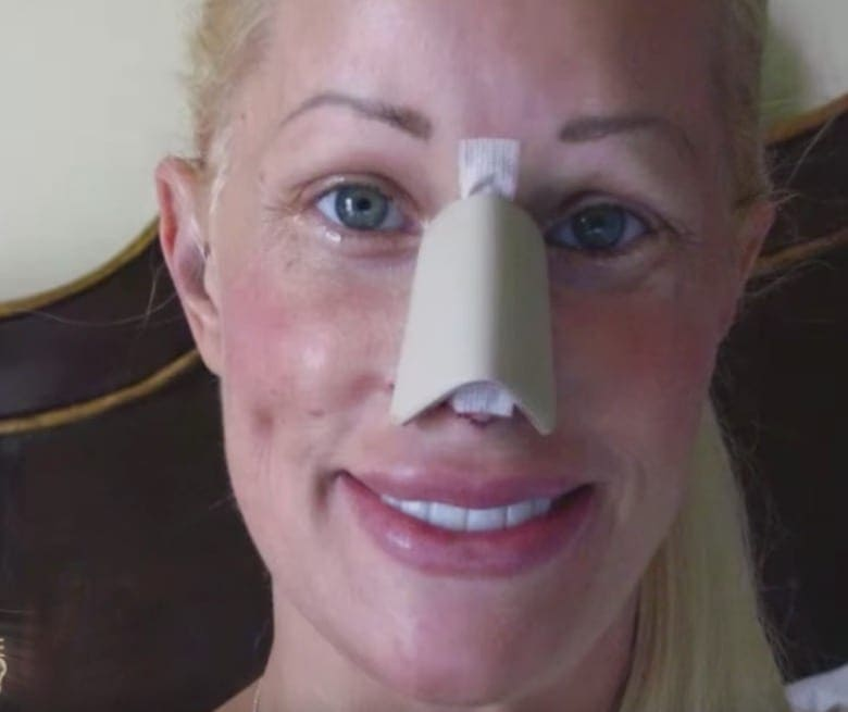 Celebrity who had the most plastic surgery