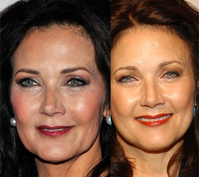 lynda-carter-botox-injections