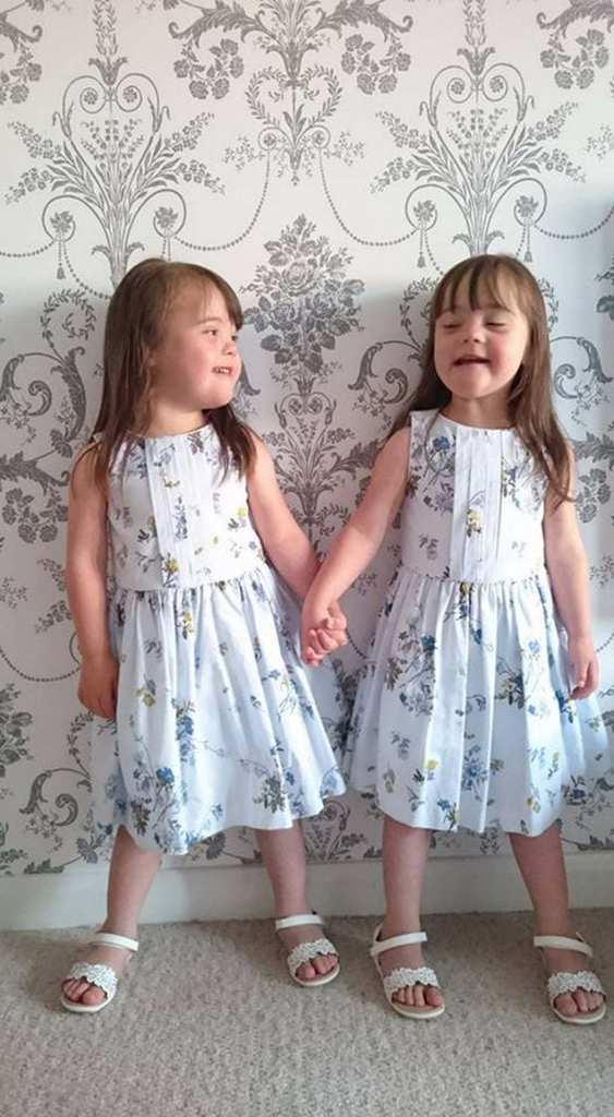 PAY-Identical-twins-born-with-Downs-syndrome