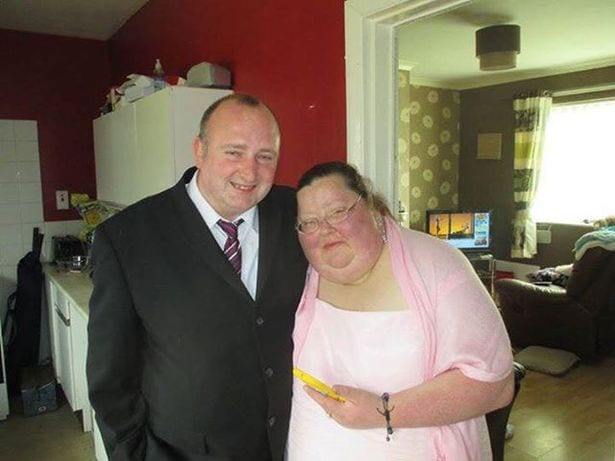 Debbie-Dyson-Furness-of-Longhill-hull-hated-her-wedding-and-lost-13st-in-nine-months-with-Slimming-World