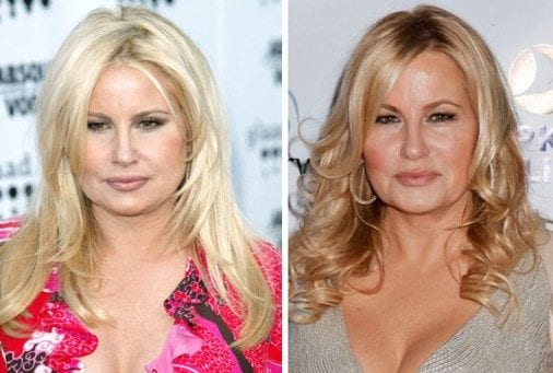 jennifer-coolidge-plastic-surgery-before-and-after-01-e1421337403883