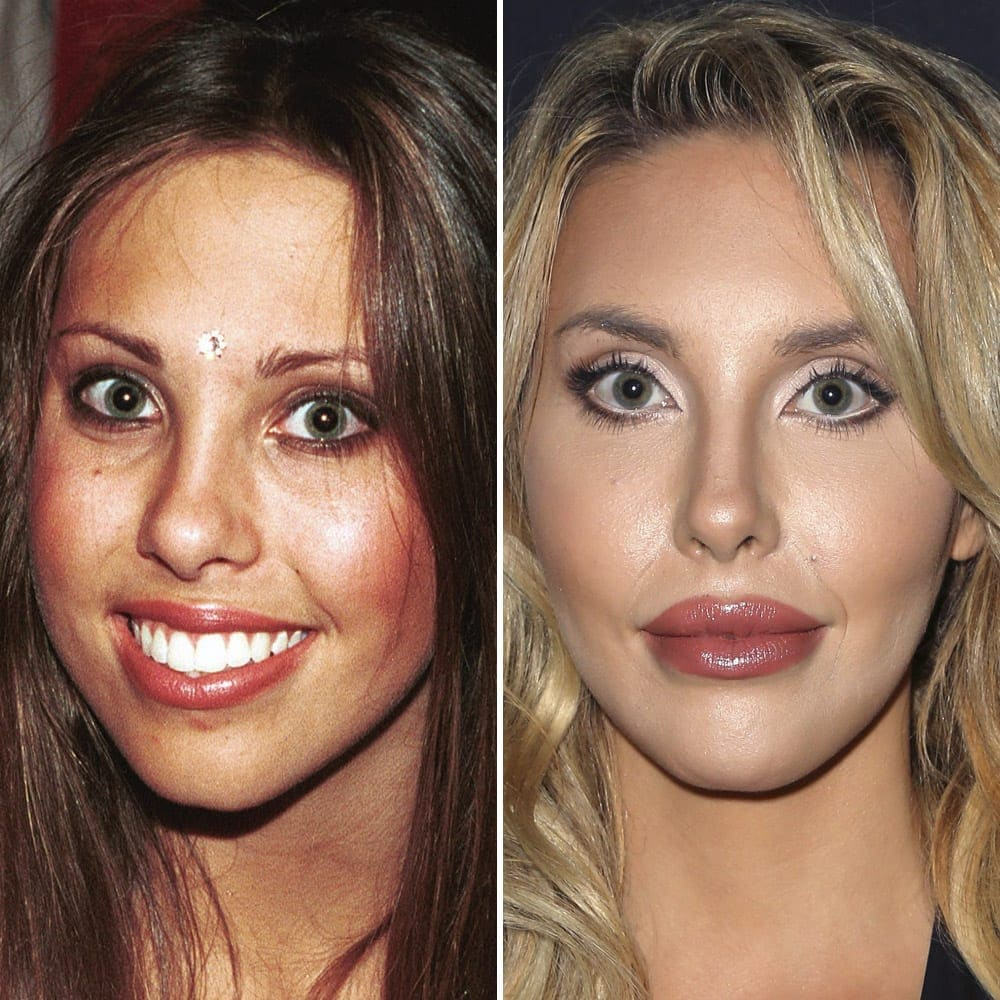 chloe-rose-lattanzi-plastic-surgery